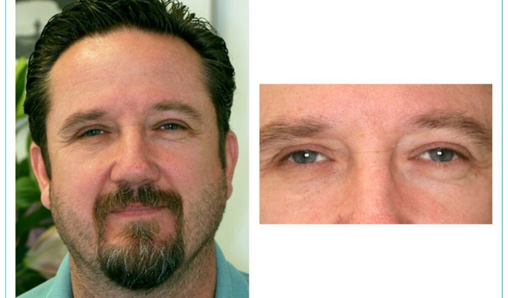 The emotional benefits of receiving an eye implant#2
